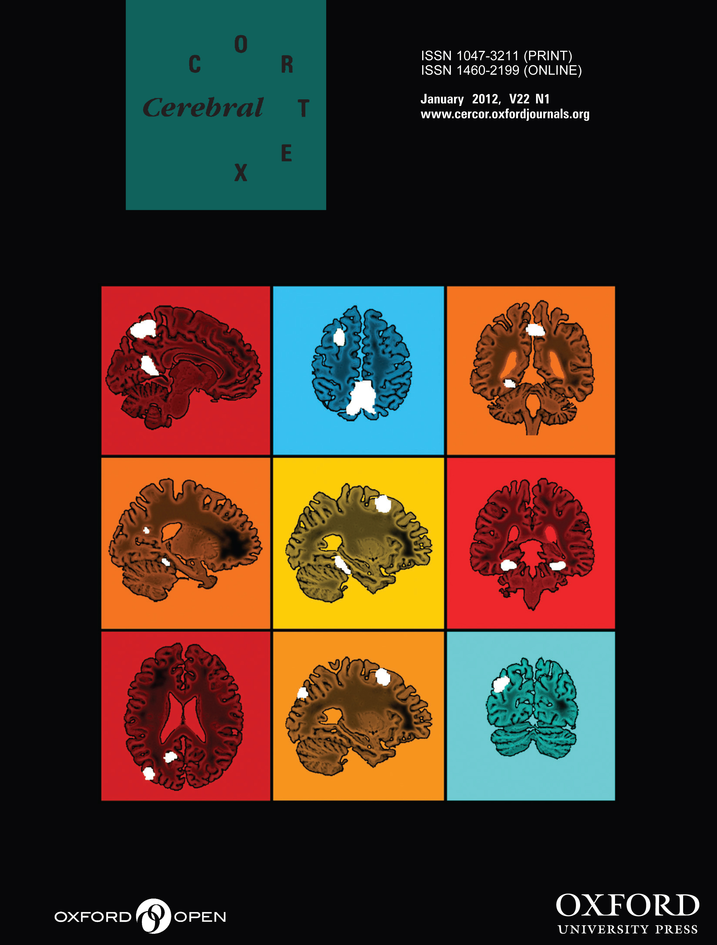 Cover of Cerebral Cortex journal featuring FIND lab research
